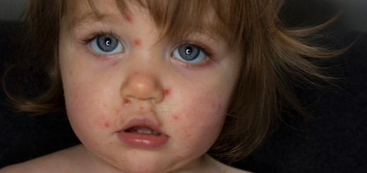 A fourteen month old baby girl with chickenpox.